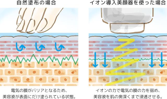 イオン導入の解図